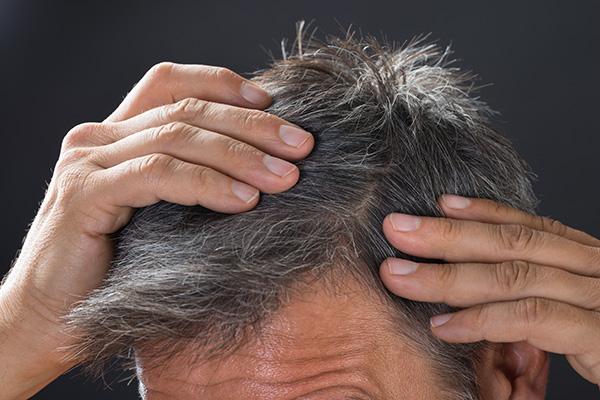 cheveux-qui-tombent